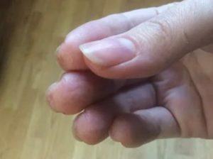 Водянистые пузырьки вокруг ногтя и на подушечках пальцев под ногтем