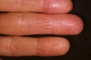 Коросты, бляшки на пальцах рук