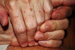 Коричневое пятно на руке