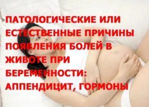 Болят мышцы живота и ног при беременности