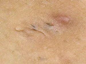 Порвалась кожная ткань под половой губой