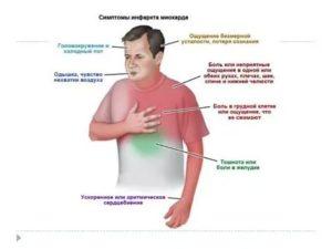 Инфаркт и тошнота
