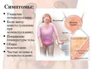 Боли во время месячных при мочеиспускании