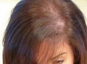 Выпадение волос при приеме ок