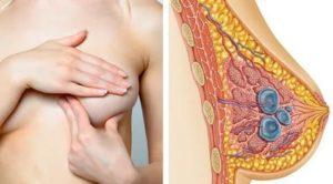 Болит грудь после откачивания кисты