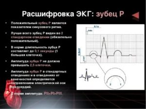 ЭКГ сердца расшифровка