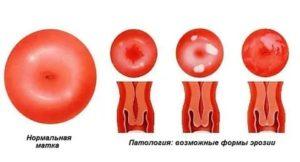 Эктопия перед зачатием