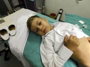 Фимоз у мальчика 8 лет