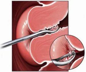 Выделения после удаления полипа эндометрия