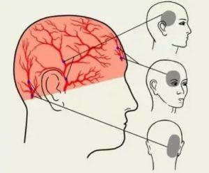 Болит голова в одной точке справа над глазом