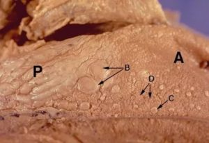 Вестибулярный папилломатоз