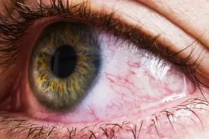 Покраснение, сетка из кровеносных сосудов на белке глаза