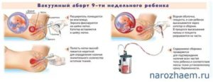 Беременность после хирургического аборта спустя 3 месяца