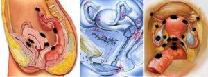 Можно ли через задний проход узнать беременность