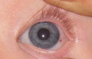 Маленькое белое уплотнение на глазном яблоке