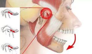 Болит челюсть после удара затылком