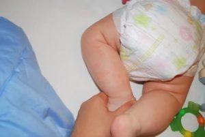 Появилось пятнышко на ножке у новорожденной