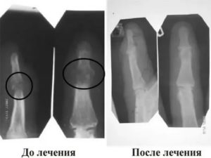 После перелома носа образовалась костная мозоль