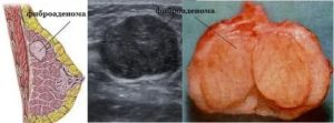 Фиброаденома и Атипичная киста Назначили порошки? Помогут они или нет