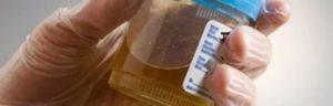Появился в моче запах пенициллина