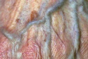 Два года трещина слизистой вульвы все время лопается