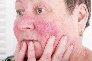Покраснение щек и носа