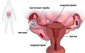 Эндометриоз и постоянные боли