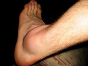 Болит нога. Как будто после ушиба