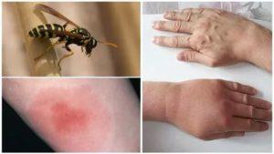 После укусов насекомых остаются пятна, которые не проходят месяцами