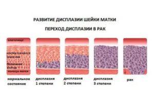 Дисплазия шейки матки 1 степени при планировании беременности