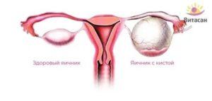 Увеличение яичников у годовалого ребенка