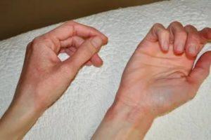 Высыпание на руках при беременности
