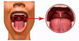 Увеличен нёбный язычок