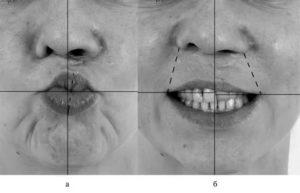 Лёгкая ассиметрия носогубных складок