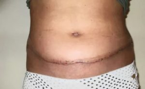 Воспаление швов после родов