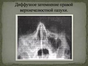 Неоднородное затемнение правой верхнечелюстной пазухи