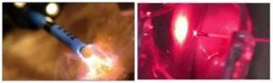 Нарушение цикла после прижигания