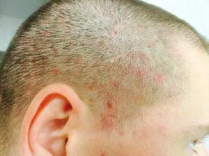 Болячки на голове у ребенка уже год