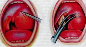 Гнойная шишка в горле