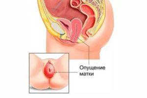 Непонятные ощущения во влагалище при беременности