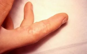 Водянистые высыпания в виде пузырьков между пальцами ног