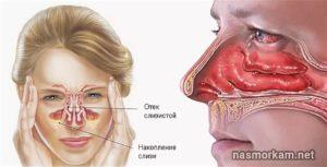 Заложенность носа, отечность глаз ежегодно. Аллергия не выявлена