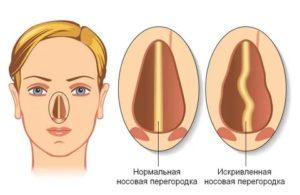 Заложенность носа при искривлении носовой перегородки