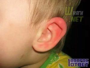 Краснота за ушами у ребенка