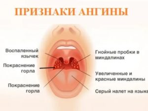 Сухость горла после ангины