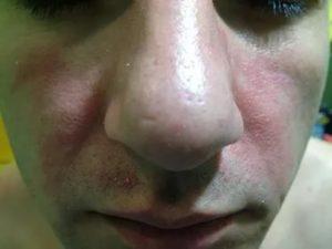 Красные пятна на носу и щеках