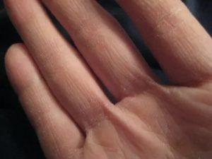 Кожа рук трескается