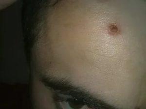 На шее образовалась рана которая не заживает