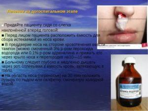 Кровь из носа при приеме Курантила