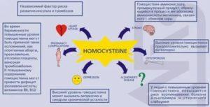 Гомоцистеин повышение перед ЭКО